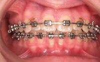 Fixed Braces